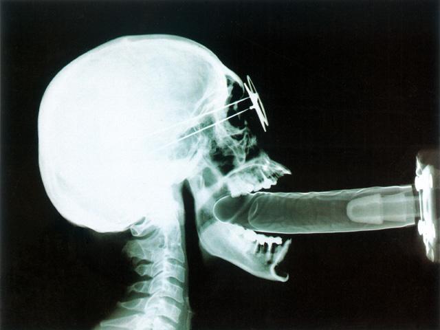 seks-na-rentgene